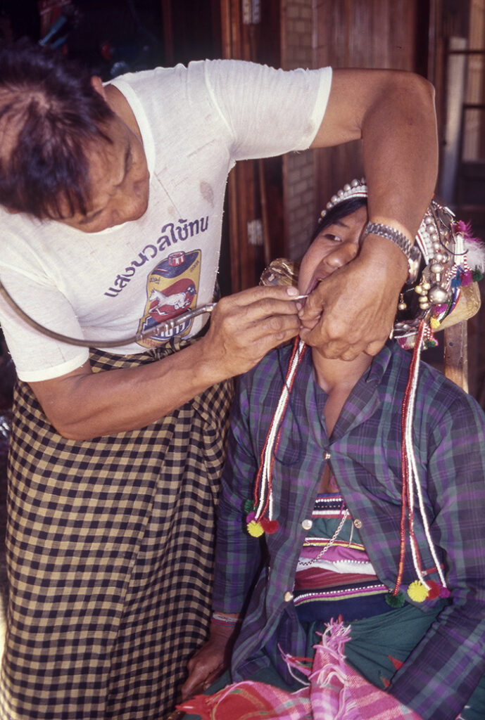 Young Akha woman being operated on by a street dentist.
